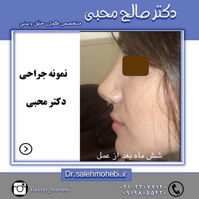 استحمام پس از جراحی بینی