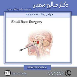 عمل جراحی قاعده جمجمه
