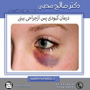 درمان کبودی پس از جراحی بینی