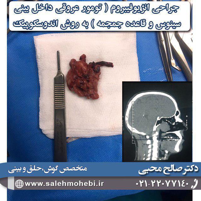 نمونه جراحی انژیوفیبروم
