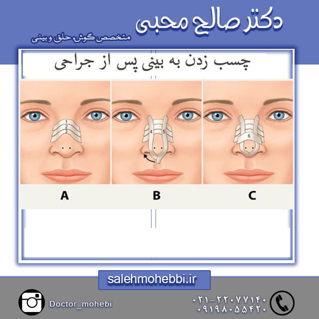چسب بینی پس از عمل جراحی