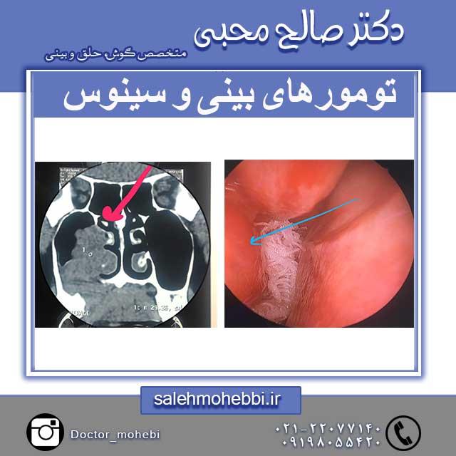 تومور بینی و سینوس