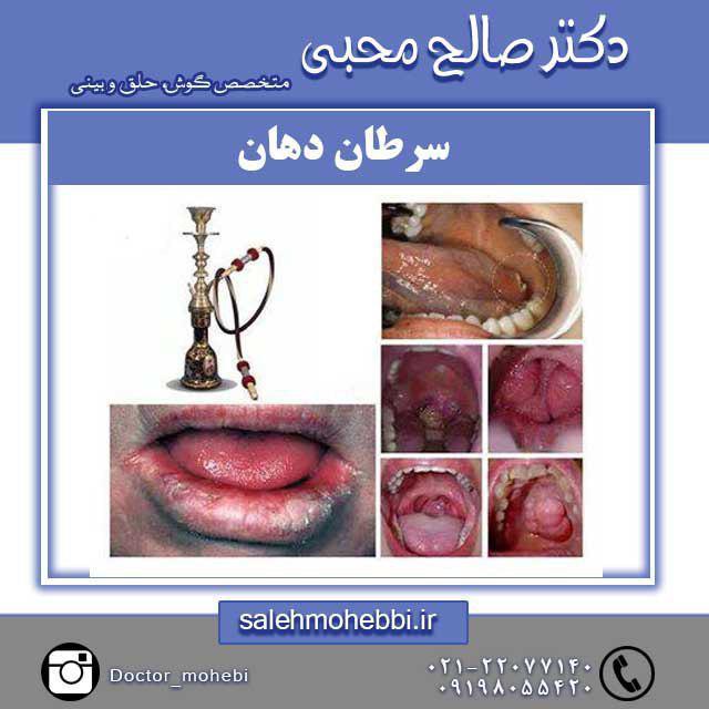 درمان سرطان دهان