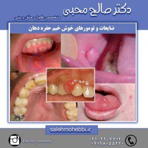 تومورهای خوش خیم دهان