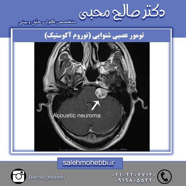درمان تومور عصبی شنوایی