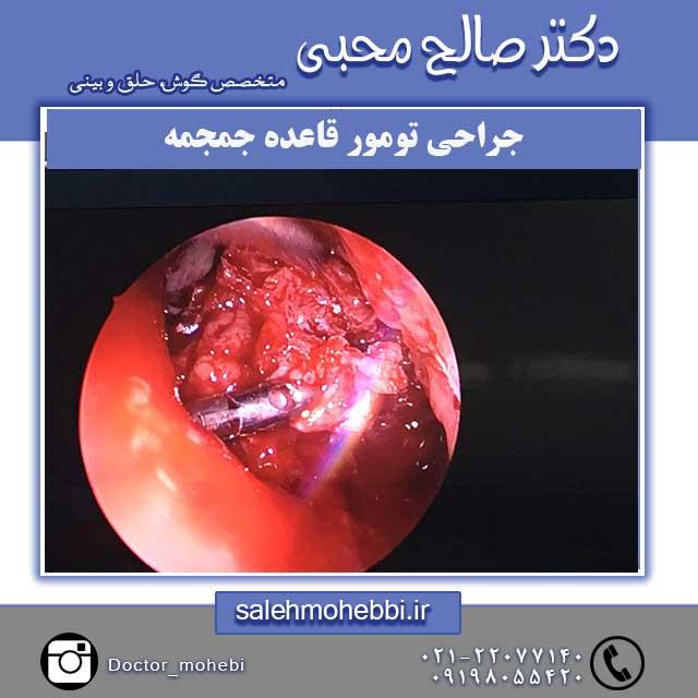 جراحی تومور قاعده جمجمه