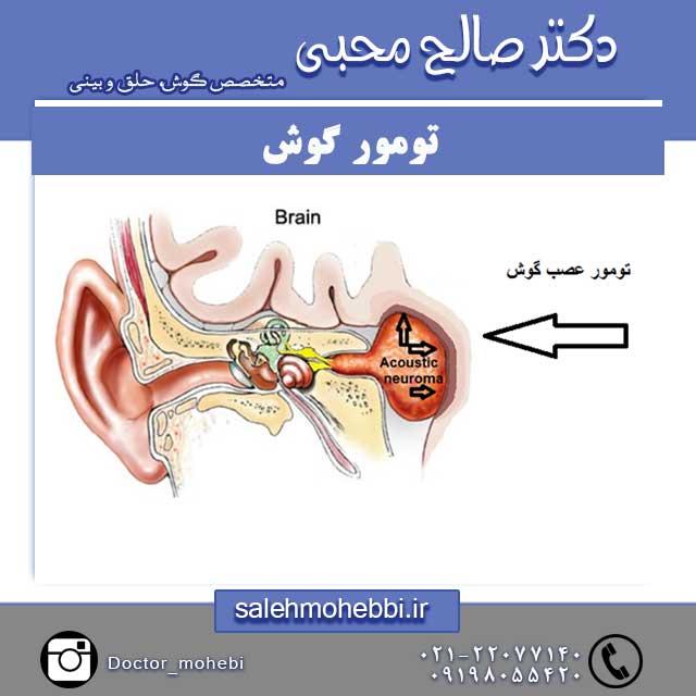 انواع تومور گوش