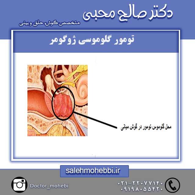 تومور گلوموسی ژوگومر
