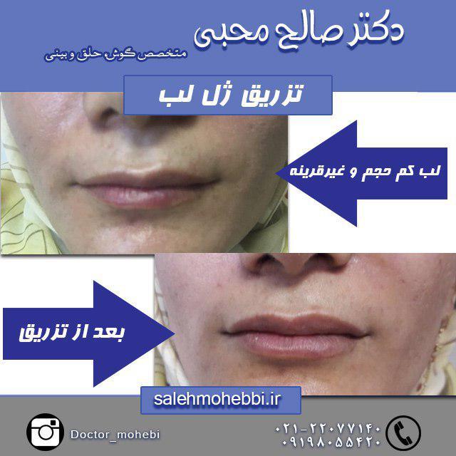نمونه قبل و بعد از تزریق ژل