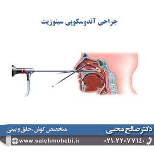 جراحی آندوسکوپی سینوزیت