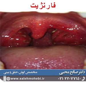بیماری فارنژیت