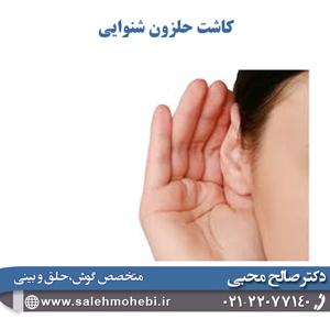 کاشت-حلزون-شنوایی با جراحی