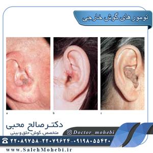 درمان تومورهای-گوش-خارجی