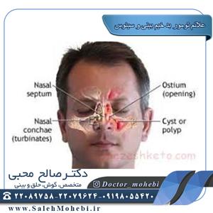 علائم تومور بدخیم بینی و سینوس
