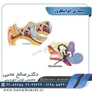 بیماری اتواسکلروز