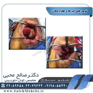 تومورهای لب ها و حفره دهان