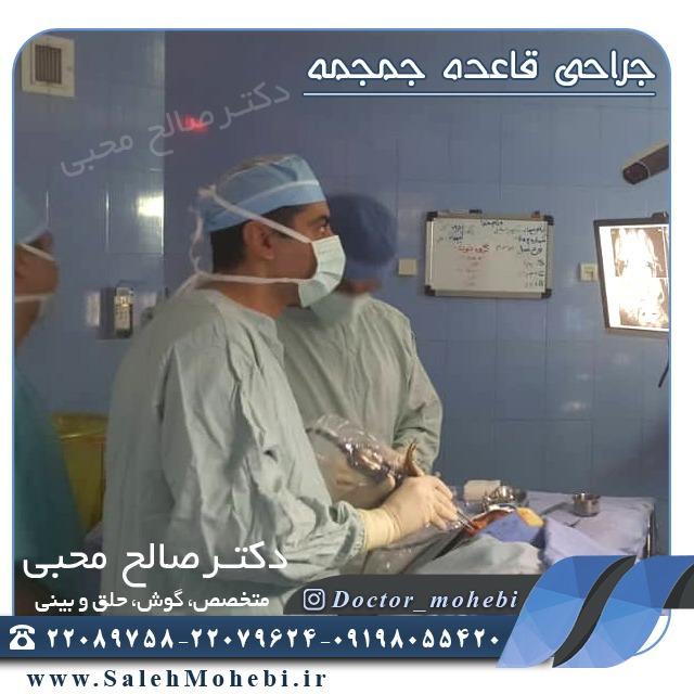 جراحی قاعده جمجعه
