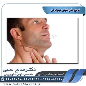 تومورهای خوش خیم گردن