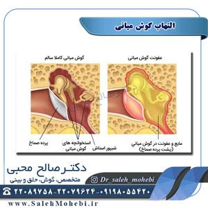 التهاب گوش میانی