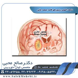 ضایعات التهابی و تومورهای قاعده جمجمه جانبی