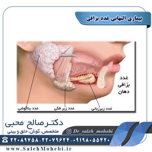 بیماری التهابی غدد بزاقی