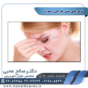 تومورهای بینی خارجی و صورت