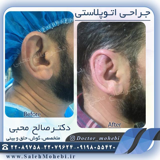 جراحی اتوپلاستی مردانه