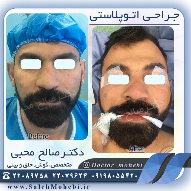 جراحی زیبایی گوش مردانه