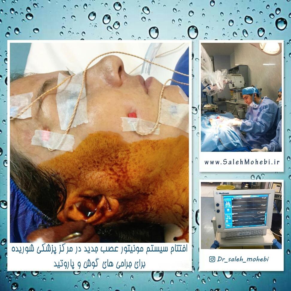 عکس بعد از جراحی اتوپلاستی