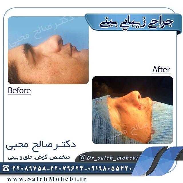 عمل جراحی بینی قبل و بعد