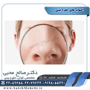 التهاب های حفره بینی