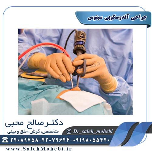 جراحی آندوسکوپی سینوس