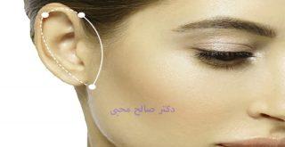جراحی زیبایی گوش